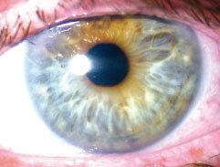 Trasplante corneal. Figura 7