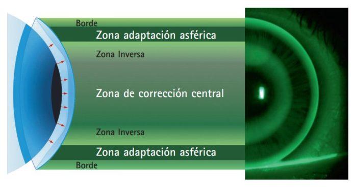 lentes de contacto tóricas